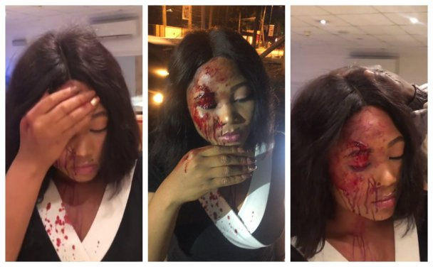 How Taxify Driver Allegedly Attacked & Robbed Young Lady In Lagos